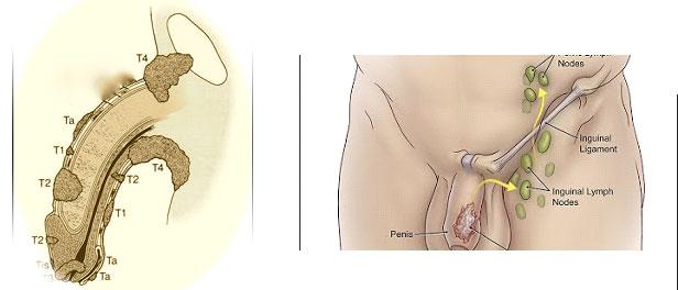 tumore pene