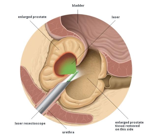 IPB ipertrofia prostatica benigna
