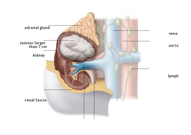 tumore del rene localizzato