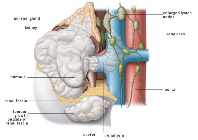 tumore rene localmente avanzato