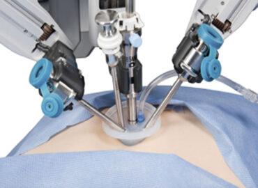 prostatectomia robot dott gatti lorenzo